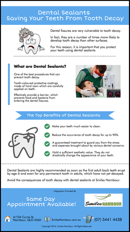Dental-Sealants-Saving-Your-Teeth-From-Tooth-Decay