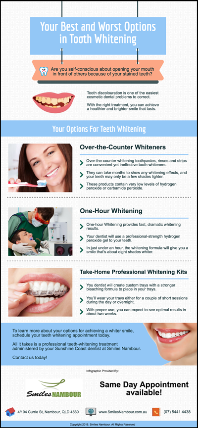 Your-Best-and-Worst-Options-in-Tooth-Whitening