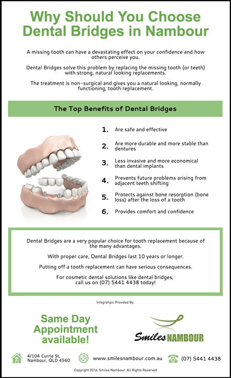 Why-Should-You-Choose-Dental-Bridges-in-Nambour