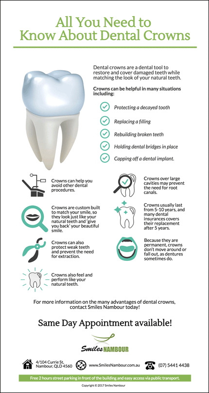 Dental Crowns: What You Need to Know