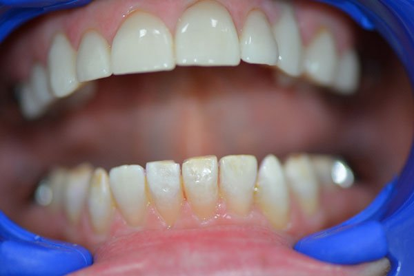 Enamel Microabrasion After Dentist Nambour