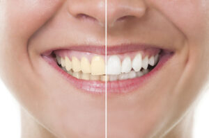 How to Get Rid of Yellow Teeth in 8 Ways