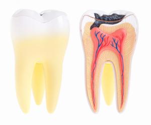 Smiles Nambour | Dental Abscess | Dentist Nambour