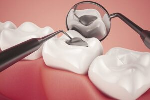 Smiles Nambour | Lost Damaged Fillings Crown and Inlays Onlays | Dentist Nambour