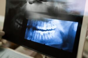 Diseases Of The Jaw | Dentist Nambour