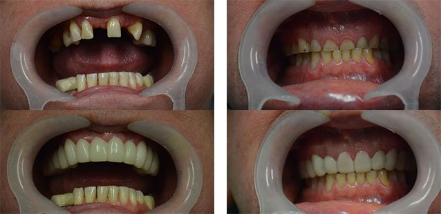 Snap on Smile before and after nambour