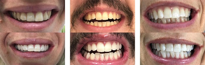 Teeth whitening before and after dentist nambour