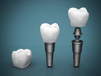 dental implants home nambour